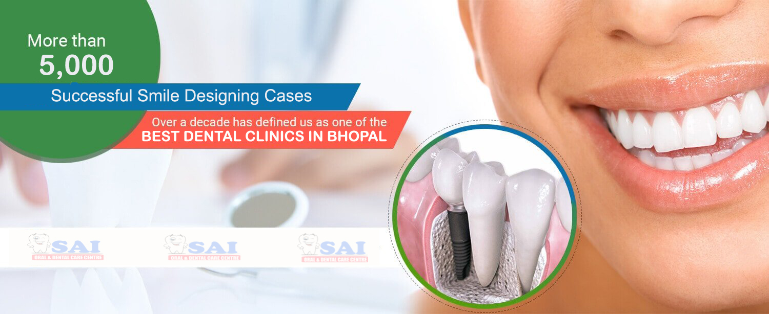 slider image 3 Sai Dental Clinics Bhopal